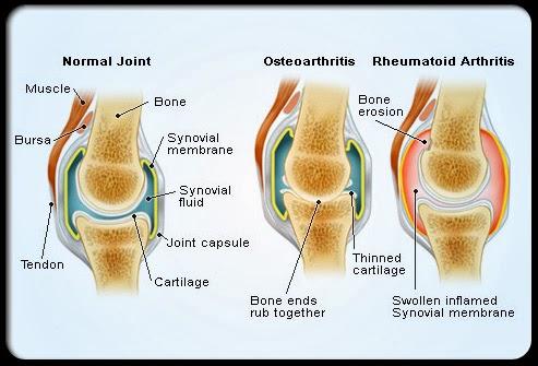 rheumatoid_arthritis_s4_normal_affected_joints